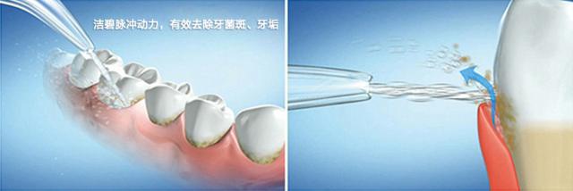 水牙线工作原理.png