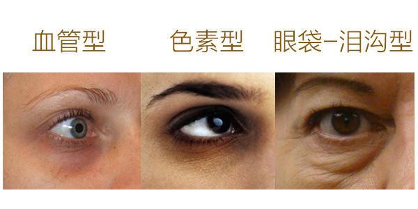 黑眼圈、眼袋用眼霜有用吗?几千块的美容仪到底能不能用在眼周?